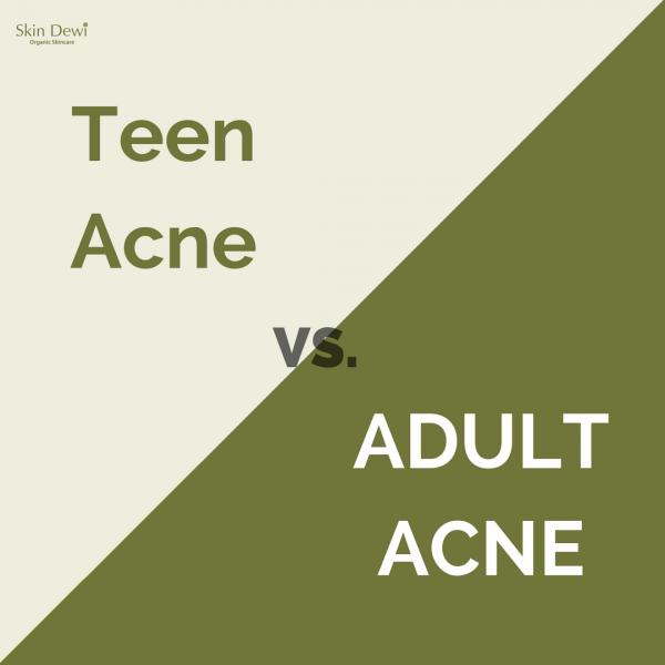 Teen Acne vs. Adult Acne